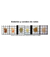 Kit SeeDB (See Deep Brain)