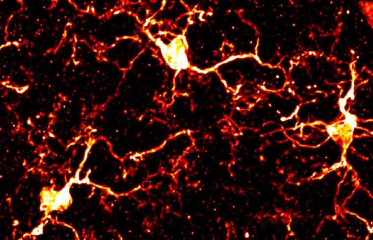 Primera Revisión: Dolor Neuropático