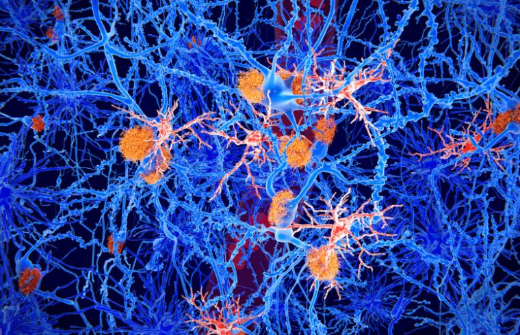 Segunda revisión: Origen de las Microglías y las Enfermedades Cerebrales