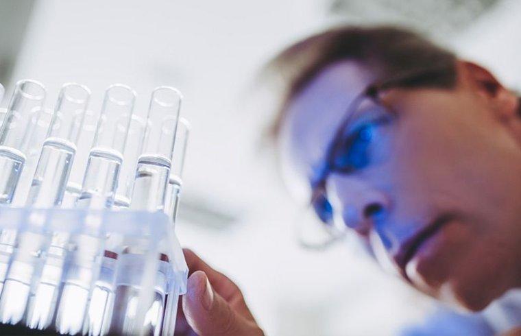 Variables en el desarrollo de reactivos para el cultivo de células madre